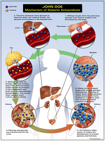 Mechanism of Diabetic Ketoacidosis